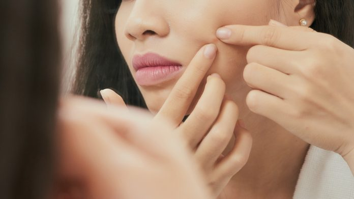 Acne Face Map Causes and Solutions: Figuring Out What Your Pimples Are Trying To Tell You