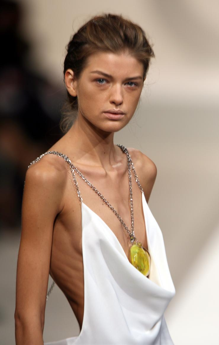 anorexia in the fashion industry